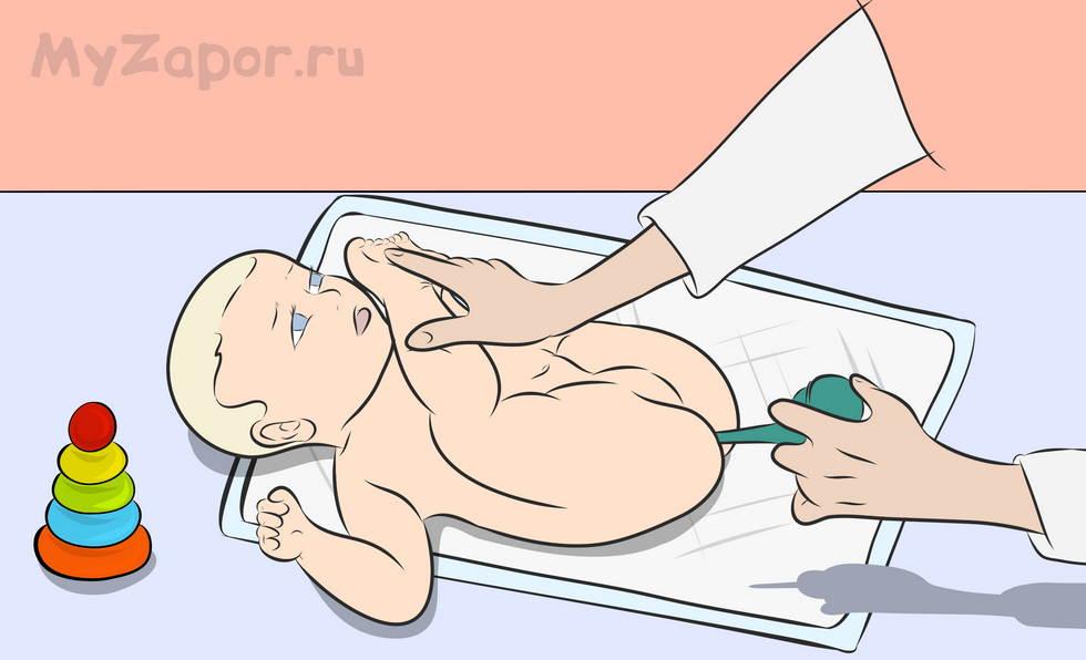 младенцу ставят клизму